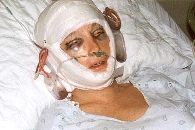 lynn s face lift surgery