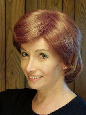 Lynn's Facial Feminization Surgery (FFS)